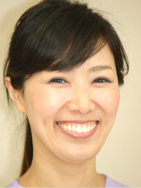 歯科麻酔認定、専門医・麻酔医加藤礼子